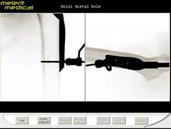 3DSystems-Haptics-Gallery-melerit_image2