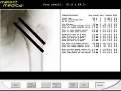 3DSystems-Haptics-Gallery-melerit_image3
