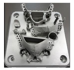 DMP Metal Dental Retainers