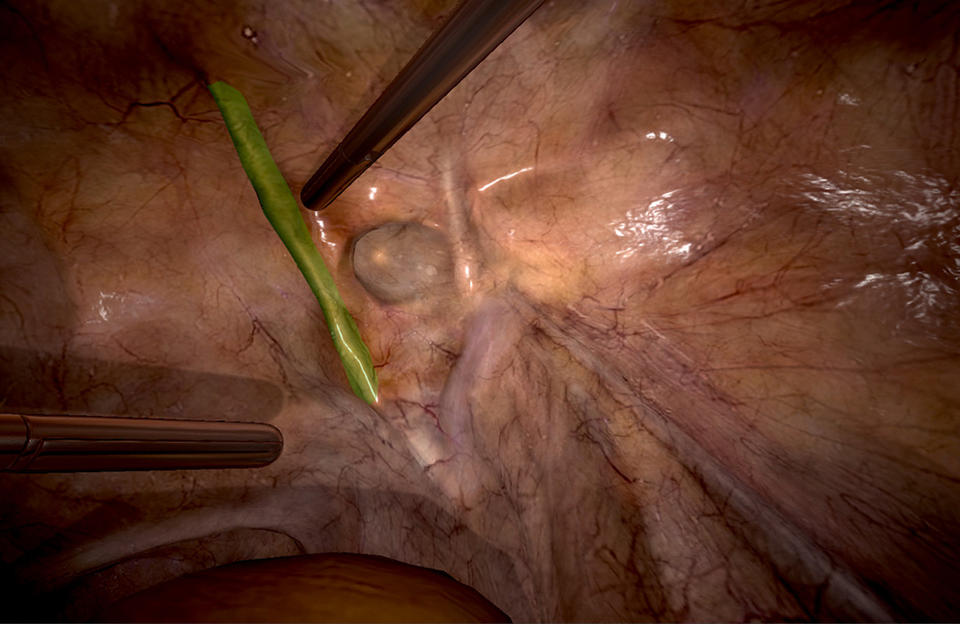 Inguinal Hernia | 3D Systems