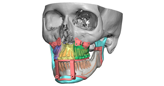 VSP Orthognathics planning image with guides