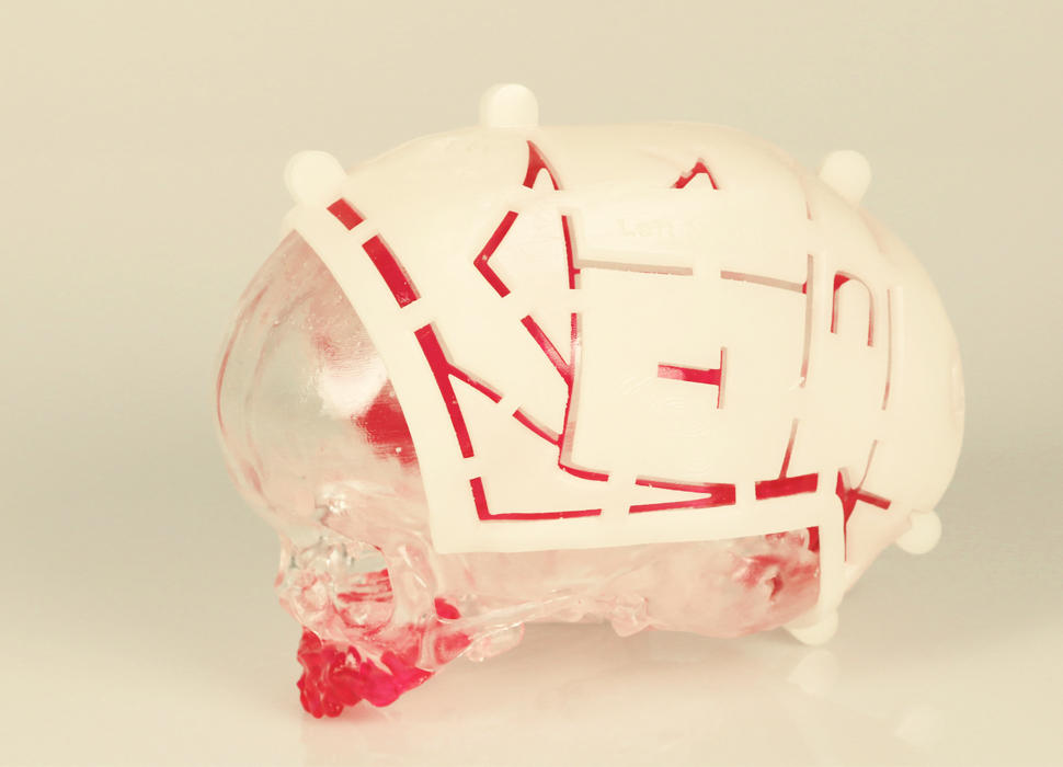 VSP Cranial Pre-Op Model with Marking Guides