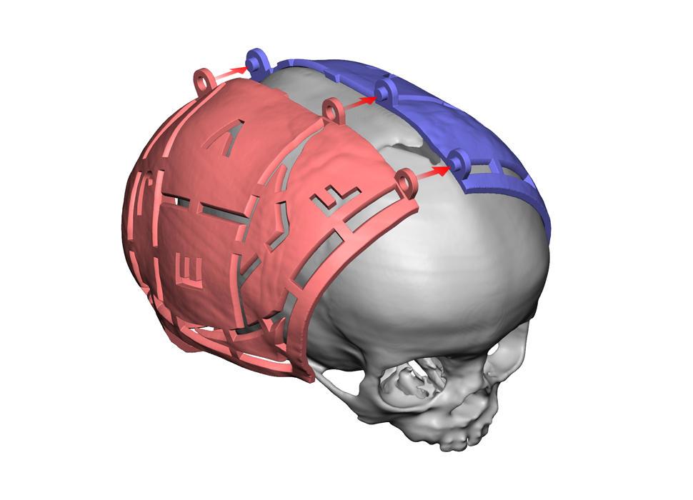 VSP Cranial Pre-Op Guides ISO