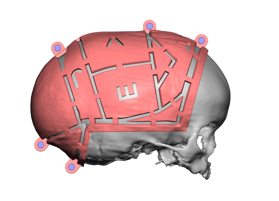 3d systems vsp cranial preop guides render