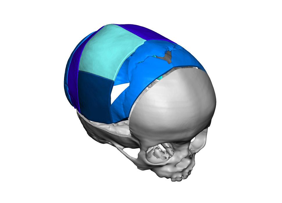 VSP Cranial Pre-Op Resected