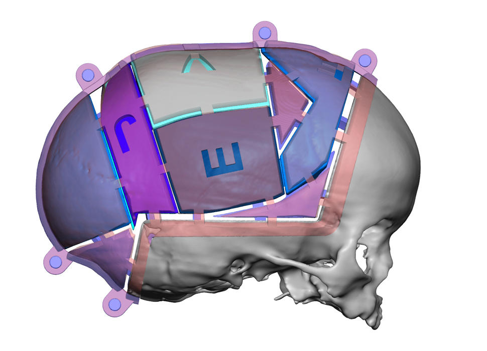 VSP Cranial Pre-Op Resected with Guides
