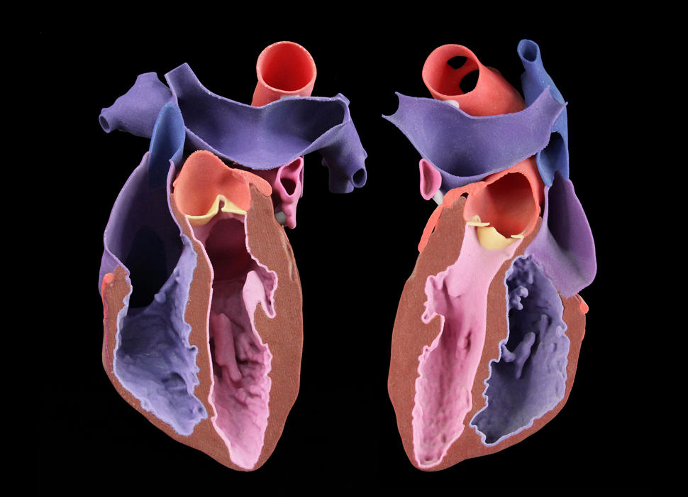 CJP Adult Heart Model