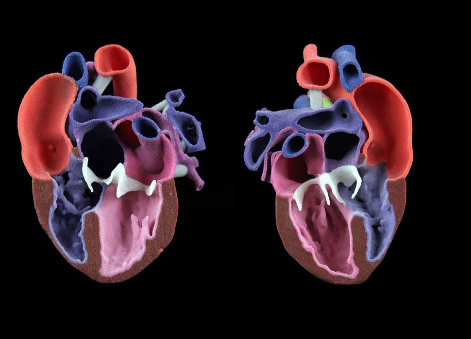 CJP Pediatric Heart