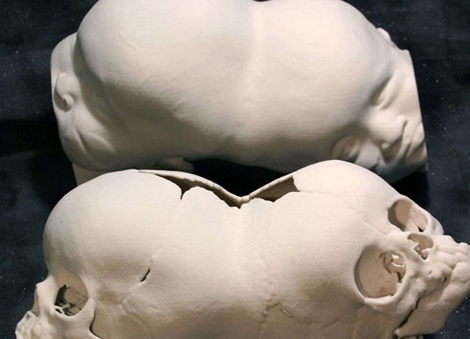 CJP White Twins