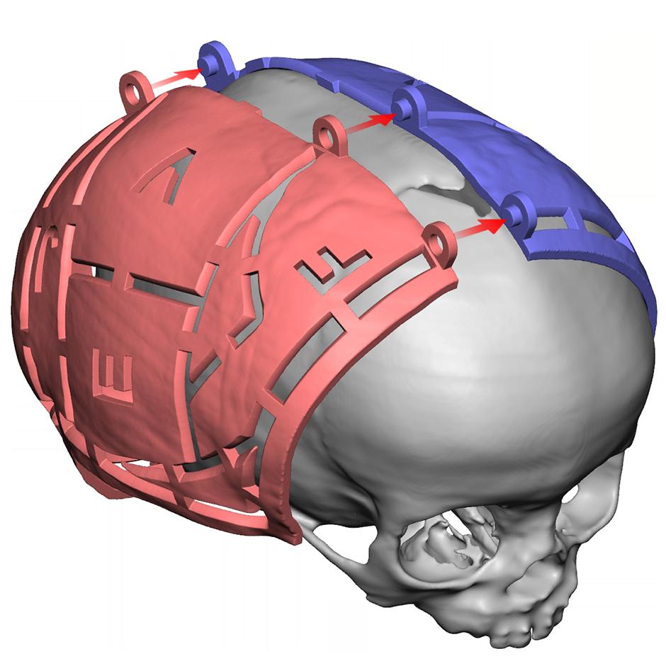 VSP Cranial Hero