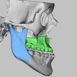 vsp orthognathics accurate osteotomy simulation