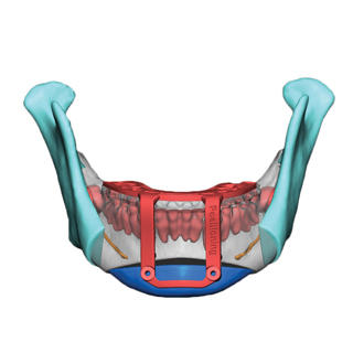 vsp orthognathics genio pos guide front blue chin