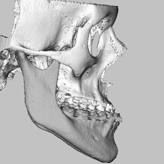 vsp orthognathics scans occlusal surface