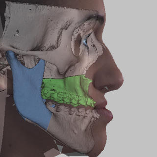 vsp orthognathics real-time 3d-bony movement ceph analysis