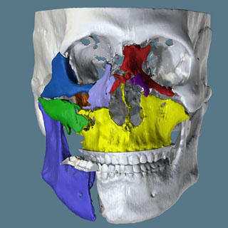 Digital Fracture Reduction