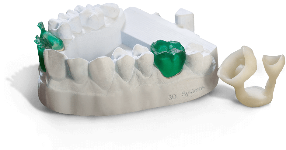 ProJet 1200 Micro SLA Teeth Model and Waxups