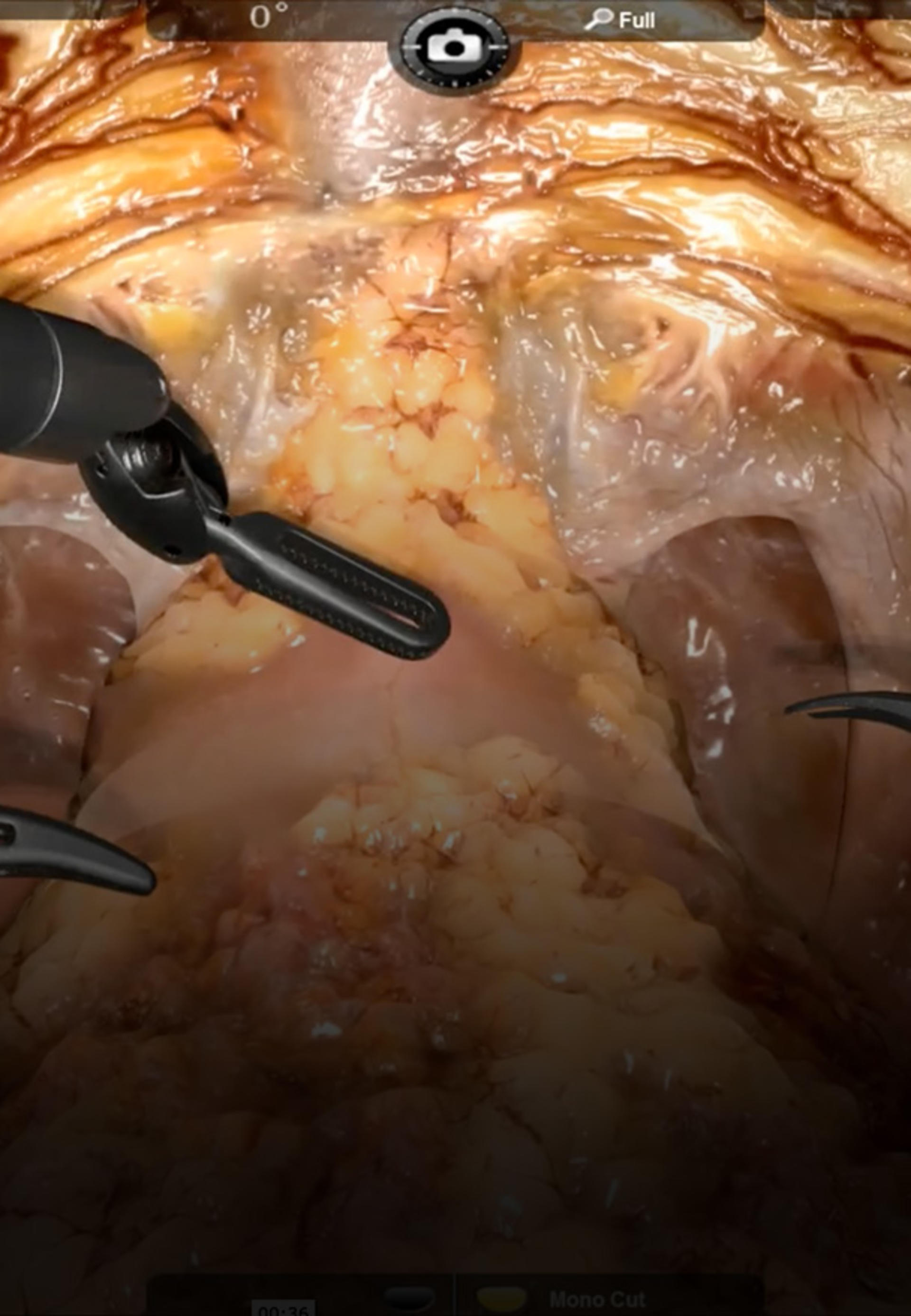 Medical Simulation for Radial Prostatectomy