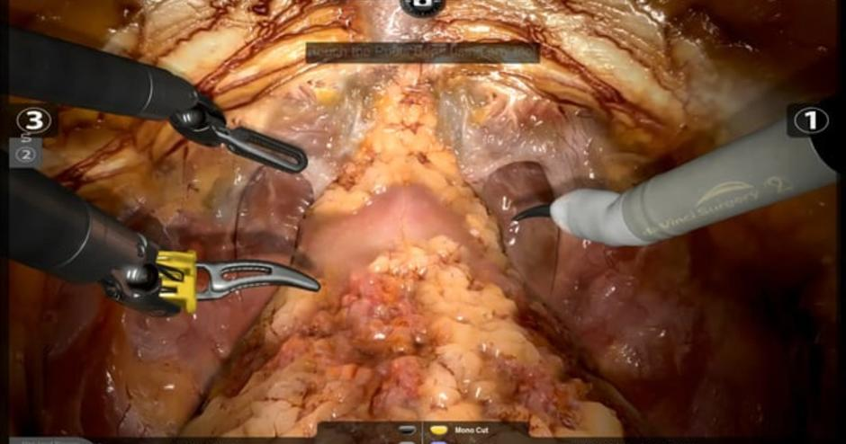Radical Prostatectomy 3d Systems