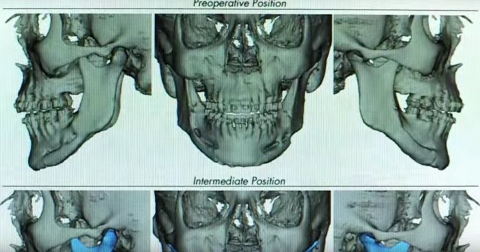 A Team Approach to Orthognathic Surgery