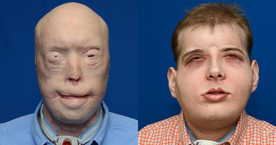 Virtual Surgical Planning Assists with Full Face Transplant